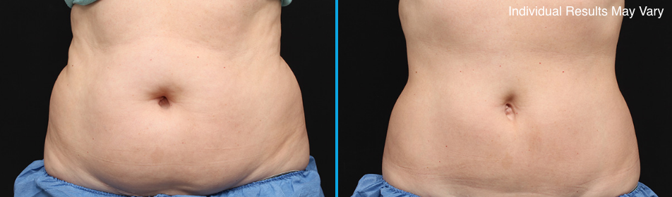 CoolSculpting Skybalance Med Spa