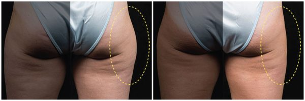 CoolSculpting® Before & After 16 Weeks After 1 CoolSculpting® Session (Single Side Treatment) Photo: Eric Bachelor, MD, FACS