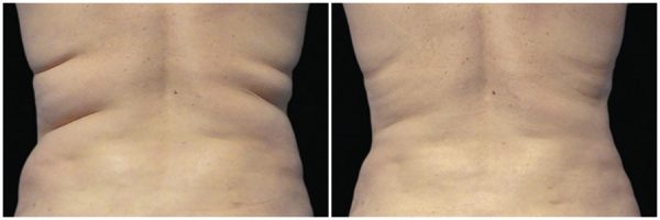 CoolSculpting® Before & After 13 Weeks After 1 CoolSculpting® Session Photo: Heartlang Plastic & Hand Surgery