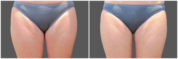 CoolSculpting® Before & After 5 Weeks After 1 CoolSculpting® Session Photo: Dr. Tracy Mountford