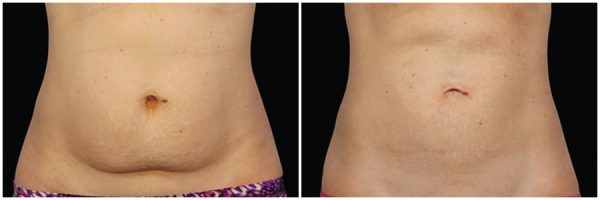 CoolSculpting® Before & After 16 Weeks After Second Session 2 CoolSculpting® Sessions Photo: Grant Stevens, MD, FACS