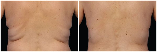 CoolSculpting® Before & After 6 Months After Third Session 3 CoolSculpting® Sessions Photo: Grant Stevens, MD, FACS