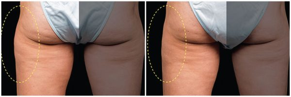 CoolSculpting® Before & After 8 Weeks After 1 CoolSculpting® Session (Single Side Treatment) Photo: Grant Stevens, MD, FACS