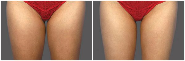 CoolSculpting® Before & After 8 Weeks After 1 CoolSculpting® Session Photo: Grant Stevens, MD, FACS