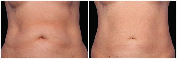 CoolSculpting® Before & After 12 Weeks After Second Session 2 CoolSculpting® Sessions Photo: Grant Stevens, MD, FACS