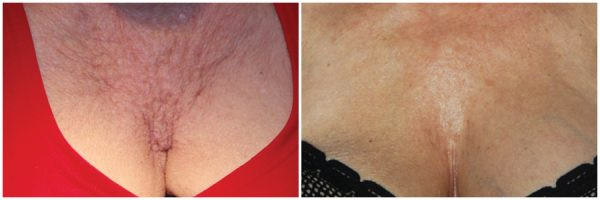 Platelet Rich Plasma (PRP) Before & After Photo: N/A