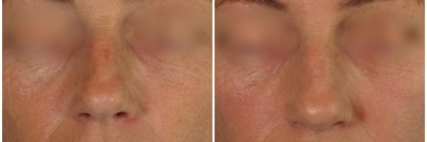 Platelet Rich Plasma (PRP) Before & After Photo: Dr. Laura Skellchock