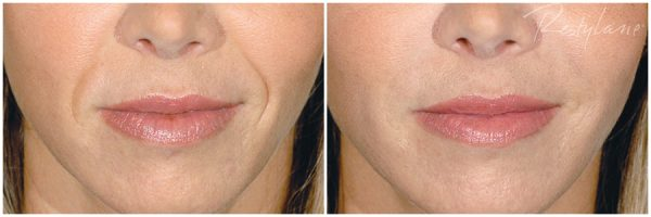 Restylane® Before & After After 3 mL of Restylane® Photo: Restylane