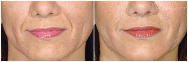 Restylane® Before & After After 2 mL of Restylane® Photo: Restylane