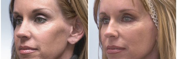 Sculptra® Before & After Photo: N/A