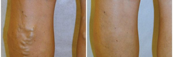 Vein Therapy Before & After Photo: N/A