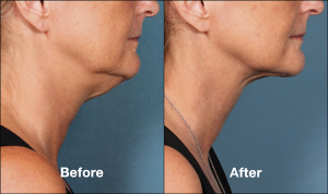 Chin Fat Reduction Kybella Injections   Schaumburg   Chicago Med Spa