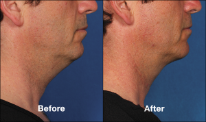 How Long Do Kybella Injections Last? | Schaumburg Medical Spa | Chicago