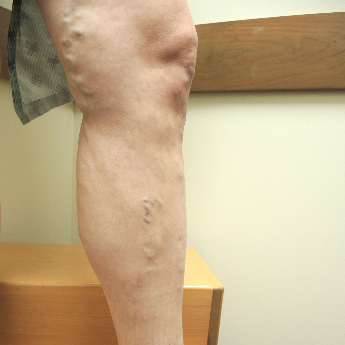Vein Therapy Skybalance Med Spa