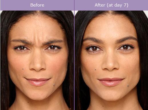 Botox Cost