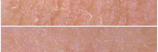 Platelet Rich Plasma Skybalance Med Spa