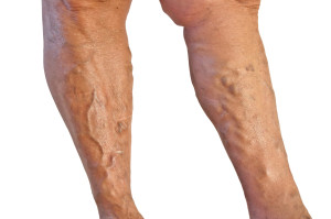 Vein Treatment Therapy Options | Chicago IL Medical Spa | Schamburg
