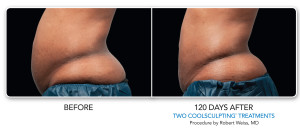 CoolSculpting | Non-Surgical Fat Reduction | MedSpa | Chicago | IL