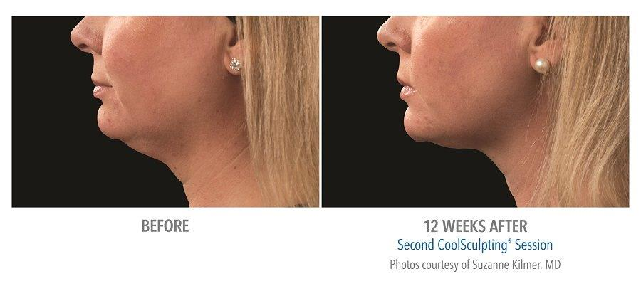Coolsculpting for chin fat reduction before after pictures
