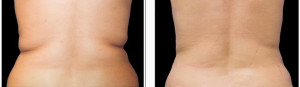 coolsculpting-before-and-after-photo1-1024x298