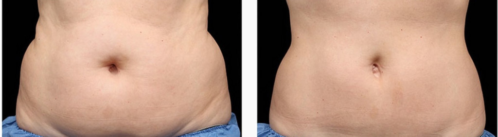 coolsculpting-before-and-after-photos1-1024x282