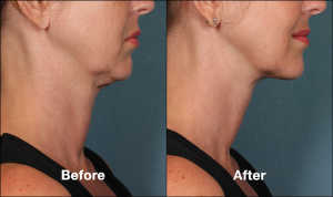 Kybella Double Chin Removal Before and After Pictures | Schaumburg