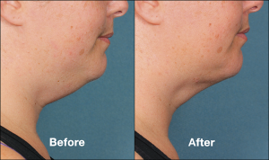 Kybella Double Chin Treatment Cost | Schaumburg Medical Spa | Chicago