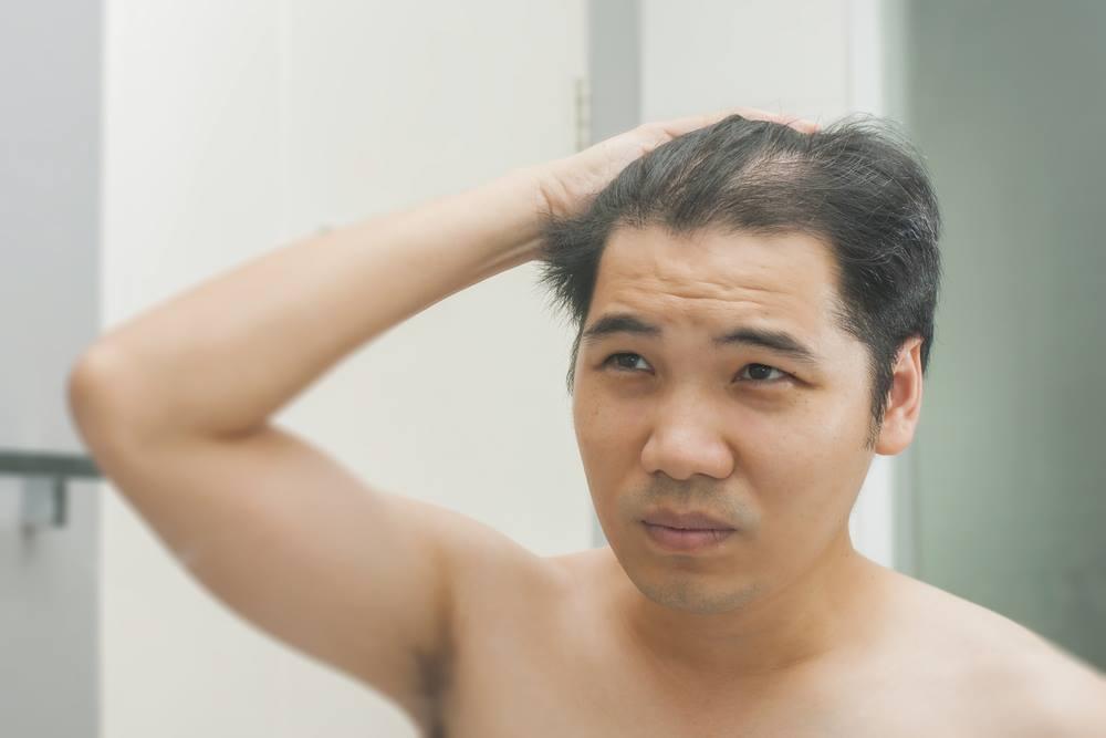 Hair Restoriation Skybalance Med Spa