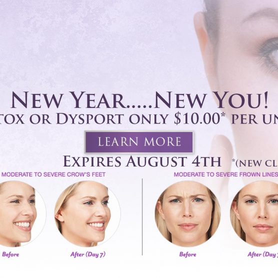 Botox or Dysport Skybalance Med Spa