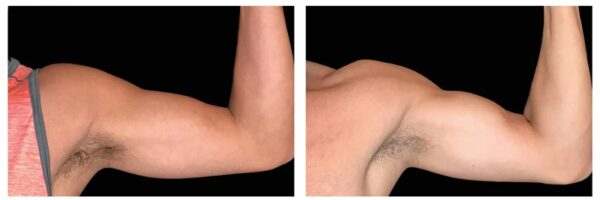 before-after-arms1