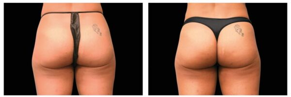 before-after-buttocks3