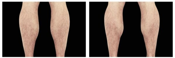before-after-legs1