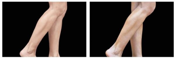 before-after-legs4